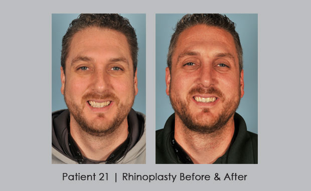 Nose Job Before and After Photos | Dr. William E. Silver