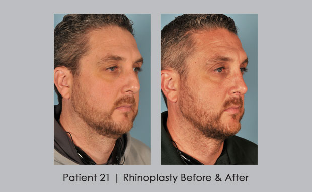 Before and After Photos of a Male Nose Job | Dr. William E. SIlver