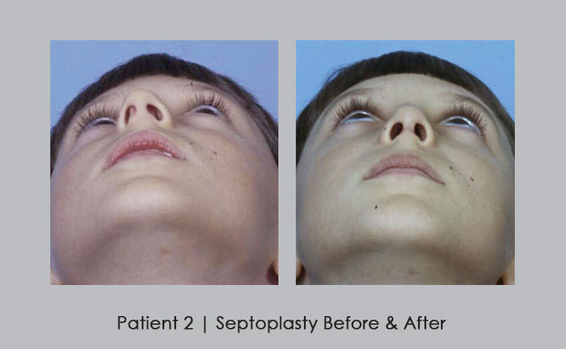 Before and after photos of septoplasty done on a  child | Dr. William E. Silver