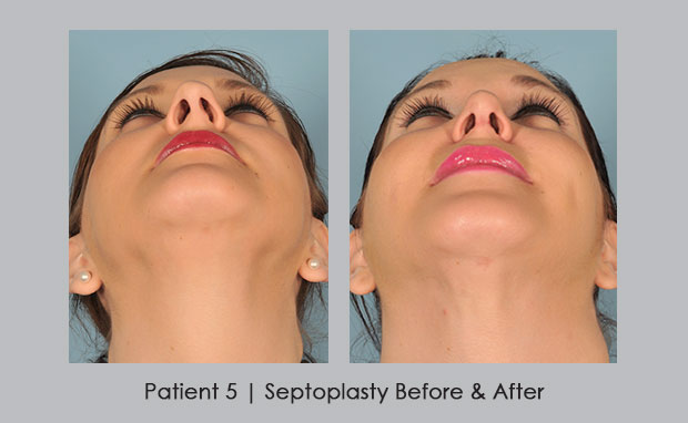 Before and after photos of septoplasty | Dr. William E. Silver