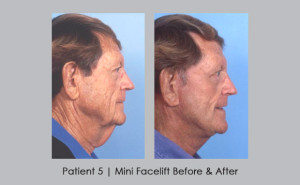 Male Facelift Patient | Dr. William E. Silver | Atlanta GA