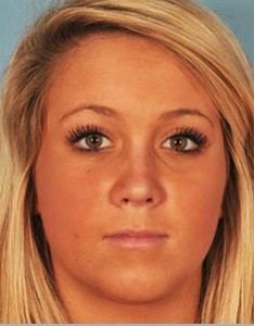 Teen Rhinoplasty Patient After Aesthetic Surgery
