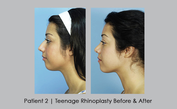 Teenage rhinoplasty before and after | Dr. Silver | Atlanta, GA