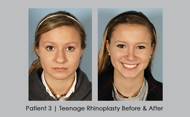 photos of patient 3 | teenage rhinoplasty | Dr. Silver, M.D.