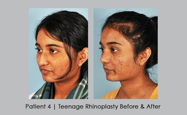 before and after photos of teenage rhinoplasty | Dr. Silver, M.D. | Atlanta, GA