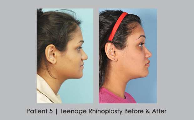 photos showing before and after of teenage rhinoplasty | Dr. Siver