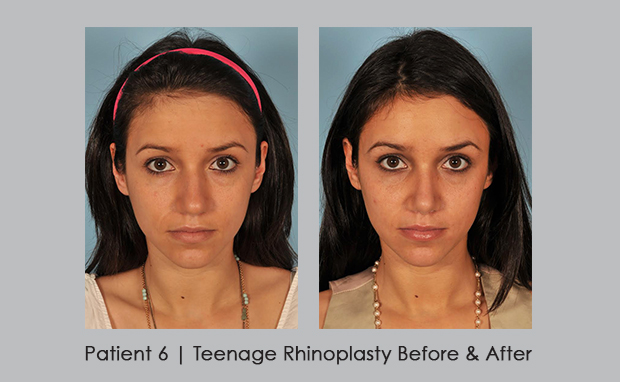 front view before and after photos showing teenage rhinoplasty | Dr. William Silver, M.D.
