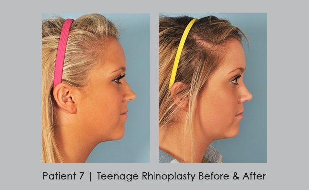 side view before and after photos of teenage rhinoplasty | Dr. William E. Silver, M.D.