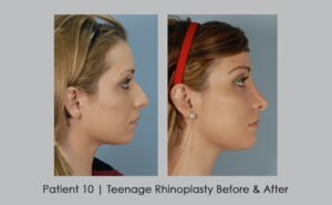 photo of before and after of teenage rhinoplasty | Atlanta area