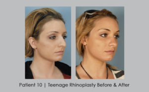 photo showing teenage rhinoplasty | metro Atlanta area