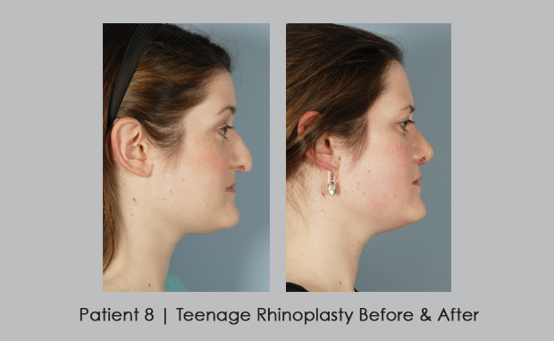 front view before and after photos of teenage rhinoplasty